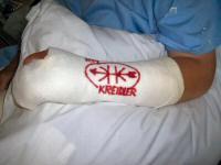 De zware tijd in ziekenhuizen, het Kreidlerlogo verlicht de pijn een beetje